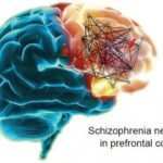 Gene expression networks in schizophrenia (Mary-Claire King)