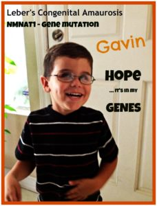 Discovery of Gavin Stevens' LCA gene is the first step towards gene therapy. (Jennifer Stevens)