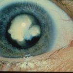 A congenital cataract is a severe clouding and hardening of the lens. (National Eye Institute)