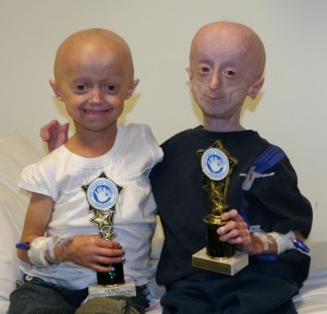 Megan and Devin have progeria. (Progeria Research Foundation)
