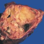 This teratoma from the chest has fat blobs, a tooth, a hair, and bone bits.