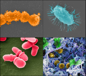 (Clockwise from top left: Streptococcus [Tom Schmidt], microbial biofilm of mixed species [A. Earl, Broad Institute/MIT], Bacillus [Tom Schmidt], Malassezia lopophilis [J.H. Carr, CDC]