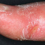 256px-Systemic_sclerosis_finger