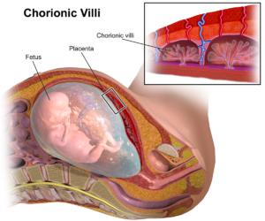 ChorionicVillus (1)